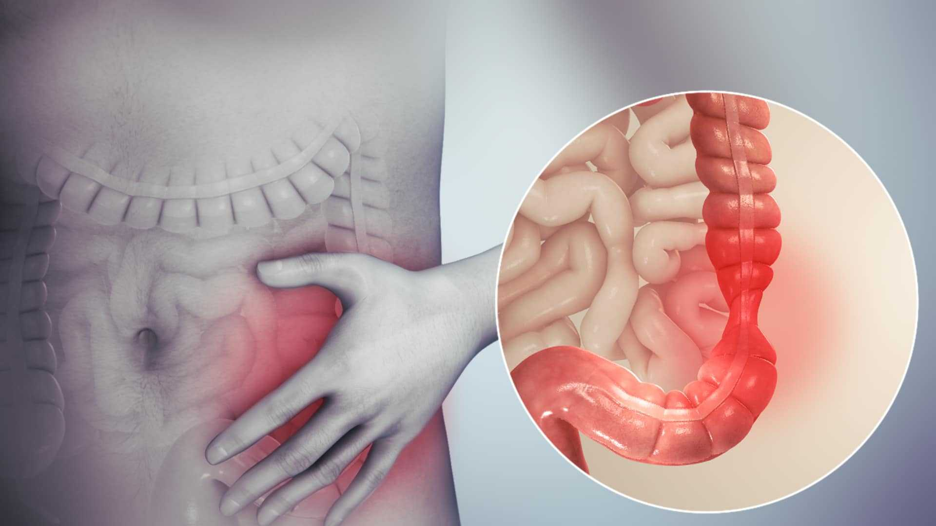 VA Disability For IBS