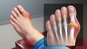 foot with gout injury