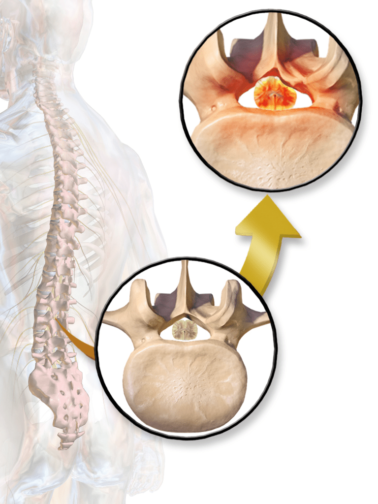 VA Disability for Spinal Stenosis