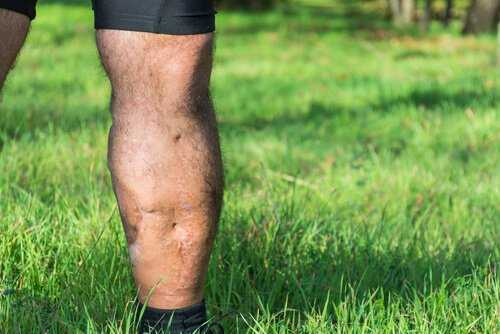 VA Disability for Scars and Disfigurement